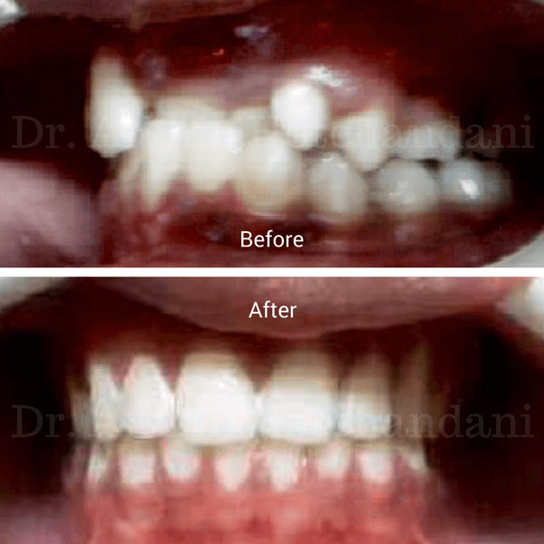 Before and after photo of patient mouth with cross bite corrected with orthodontic treatment by Dr. Arshin Hotchandani