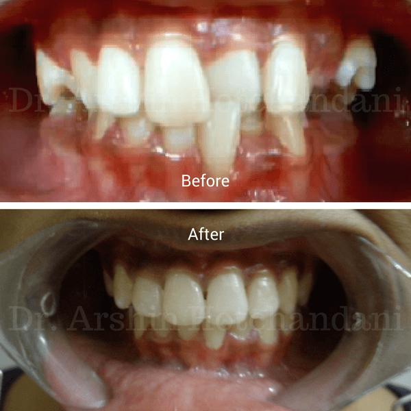 Before and after photo of patient mouth with cross bite corrected with orthodontic treatment by Dr. Hina Desai