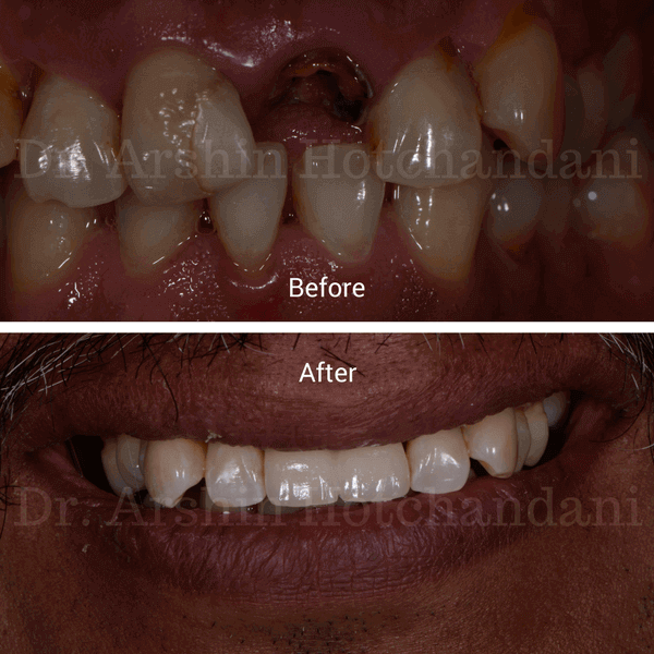 Before and after photo of patient mouth with decayed & broken front teeth replaced with dental implants by Dr. Arshin Hotchandani