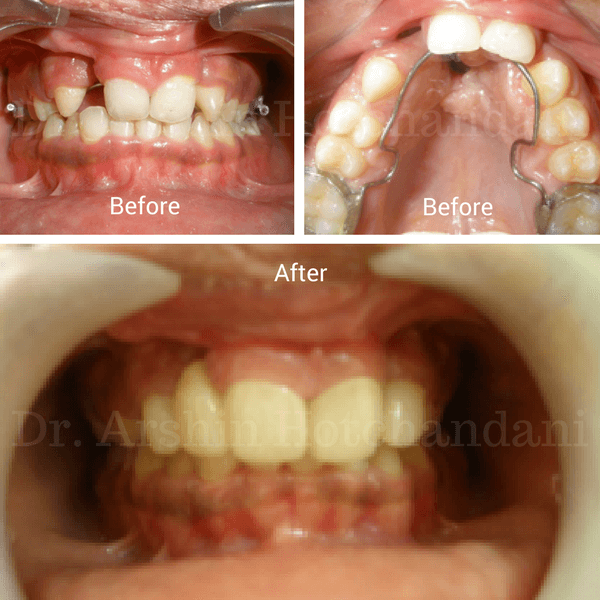 Before and after photo of patient mouth with complex lip & palate fixed with orthodontics & metal free restorations by Dr. Arshin Hotchandani and Dr. Hina Desai