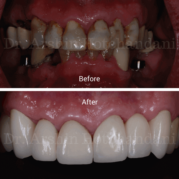 Before and after photo of patient mouth with old teeth stains and cavity restored to natural like appearance by Dr. Arshin Hotchandani